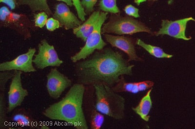 Immunocytochemistry/ Immunofluorescence - Anti-Retinoic Acid Receptor beta antibody (ab53161)