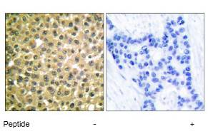 Immunohistochemistry (Formalin/PFA-fixed paraffin-embedded sections) - Anti-Retinoic Acid Receptor beta antibody (ab53161)