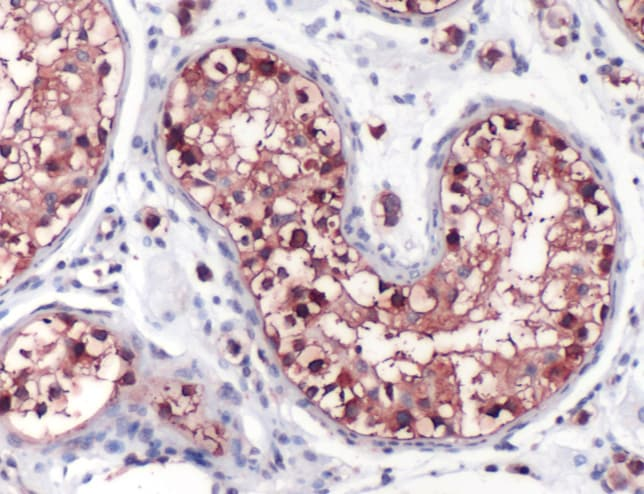 Immunohistochemistry (Formalin/PFA-fixed paraffin-embedded sections) - Anti-GCLC antibody (ab53179)