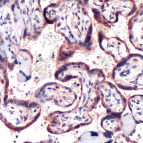 Immunohistochemistry (Paraffin-embedded sections) - Anti-SOCS6 antibody - Carboxyterminal end (ab53181)