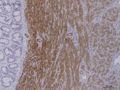 Immunohistochemistry (Formalin/PFA-fixed paraffin-embedded sections) - Anti-smooth muscle Myosin heavy chain 11 antibody (ab53219)