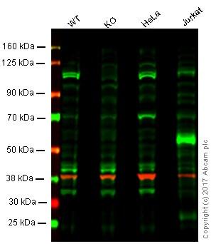 Western blot - Anti-KDM1 / LSD1 antibody [LSD1-12] (ab53269)