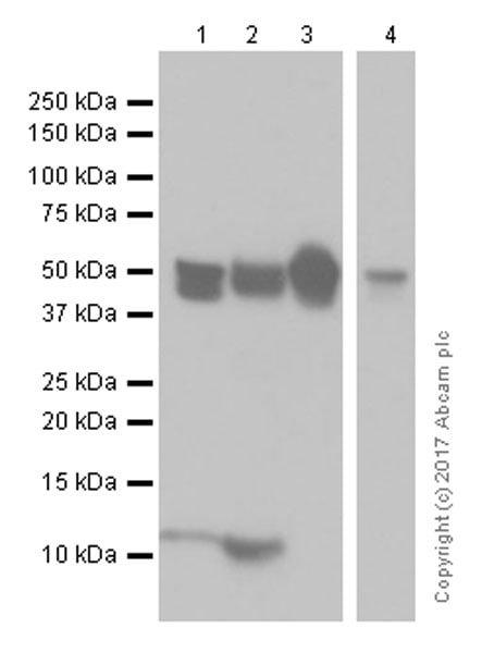 Western blot - Anti-Cytokeratin 8 antibody [EP1628Y] - Cytoskeleton Marker (ab53280)