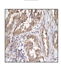 Immunohistochemistry (Formalin/PFA-fixed paraffin-embedded sections) - Anti-Sonic Hedgehog antibody [EP1190Y] (ab53281)