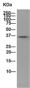Western blot - Anti-PPP1CB antibody [EP1804Y] (ab53315)