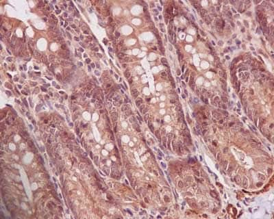 Immunohistochemistry (Formalin/PFA-fixed paraffin-embedded sections) - Anti-PPP1CB antibody [EP1804Y] (ab53315)
