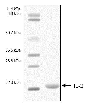 SDS-PAGE - Recombinant Human IL-2 protein (ab53322)