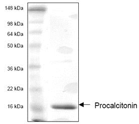SDS-PAGE - Recombinant Human Procalcitonin protein (ab53369)
