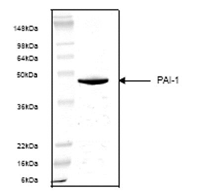 SDS-PAGE - Recombinant Human PAI1 protein (ab53388)