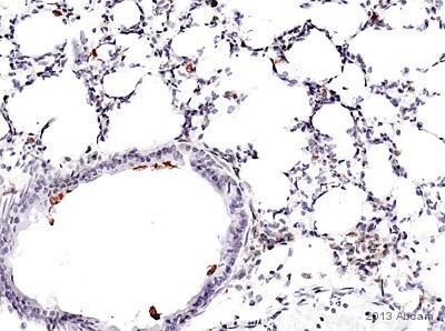Immunohistochemistry (Frozen sections) - Anti-CD68 antibody [FA-11] (ab53444)