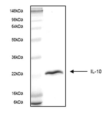 SDS-PAGE - Recombinant Human IL-10 protein (ab53502)