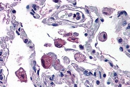 Immunohistochemistry (Formalin/PFA-fixed paraffin-embedded sections) - Anti-FLAP antibody (ab53536)