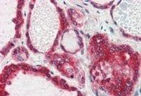 Immunohistochemistry (Formalin/PFA-fixed paraffin-embedded sections) - Anti-Lipin 3 antibody (ab53548)
