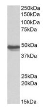 Western blot - Anti-GFAP antibody (ab53554)