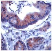 Immunohistochemistry (Formalin/PFA-fixed paraffin-embedded sections) - Anti-IRS1 antibody, prediluted (ab53649)