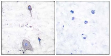 Immunohistochemistry (Formalin/PFA-fixed paraffin-embedded sections) - Anti-SIRP alpha antibody (ab53721)