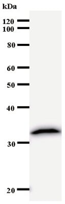 Western blot - Anti-ZNF35 antibody [3413C5a] (ab53752)