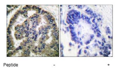 Immunohistochemistry (Formalin/PFA-fixed paraffin-embedded sections) - Anti-TGF beta 2 antibody (ab53778)