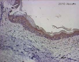Immunohistochemistry (Formalin/PFA-fixed paraffin-embedded sections) - Anti-Hyaluronic acid antibody (ab53842)