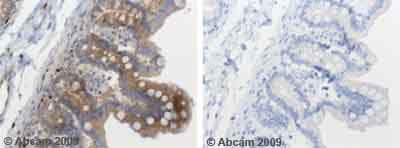 Immunohistochemistry (Formalin/PFA-fixed paraffin-embedded sections) - Anti-SOCS3 antibody (ab53984)