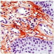 Immunohistochemistry (Formalin/PFA-fixed paraffin-embedded sections) - Anti-Tenascin C antibody [SPM319], prediluted (ab54348)
