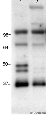 Western blot - Anti-Repulsive Guidance Molecule C antibody [Fery-1] (ab54431)