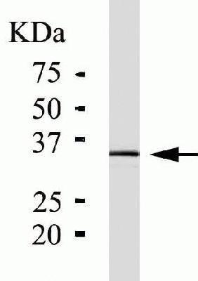 Western blot - Anti-PIM1 antibody [ZP003] (ab54503)