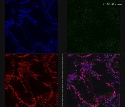 Immunocytochemistry/ Immunofluorescence - Anti-KAT3B / p300 antibody (ab54984)