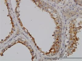 Immunohistochemistry (Formalin/PFA-fixed paraffin-embedded sections) - Anti-GGT1/GGT antibody (ab55138)