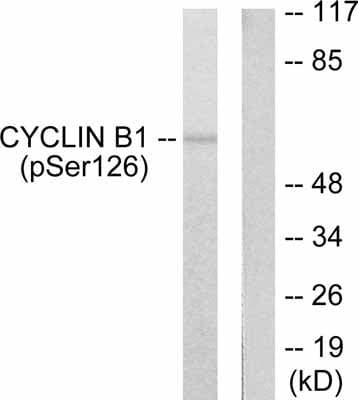 Western blot - Anti-Cyclin B1 (phospho S126) antibody (ab55184)