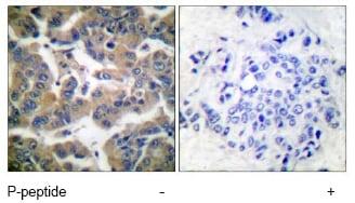 Immunohistochemistry (Formalin/PFA-fixed paraffin-embedded sections) - Anti-Glucocorticoid Receptor (phospho S211) antibody (ab55189)