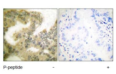 Immunohistochemistry (Formalin/PFA-fixed paraffin-embedded sections) - Anti-Cyclin D3/CCND3 (phospho T283) antibody (ab55322)