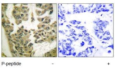 Immunohistochemistry (Formalin/PFA-fixed paraffin-embedded sections) - Anti-GRLF1 (phospho Y1105) antibody (ab55339)