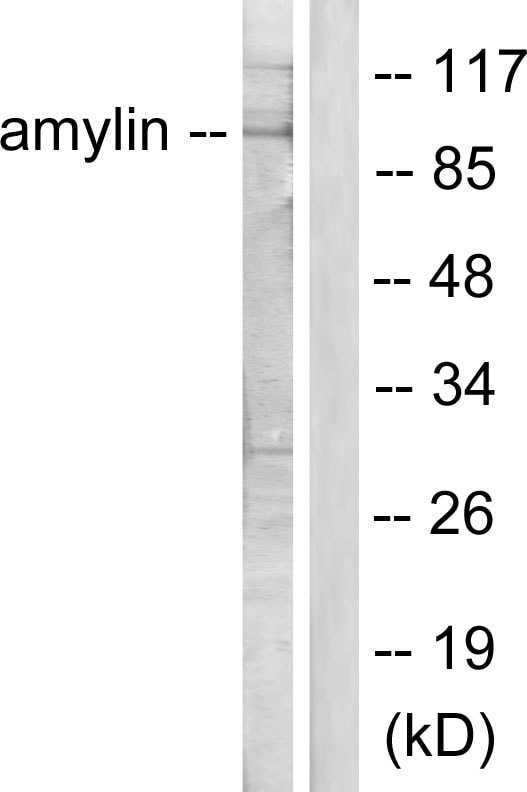 Western blot - Anti-Amylin/DAP antibody (ab55411)
