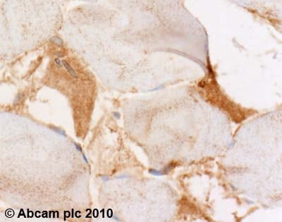 Immunohistochemistry (Formalin/PFA-fixed paraffin-embedded sections) - Anti-NBR1 antibody (ab55474)