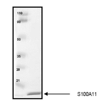 SDS-PAGE - Recombinant Human S100A11 protein (ab55569)
