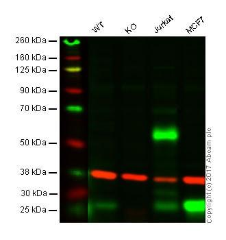 Western blot - Anti-RAB27A antibody (ab55667)