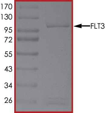 SDS-PAGE - Recombinant human Flt3 / CD135 protein (ab55709)