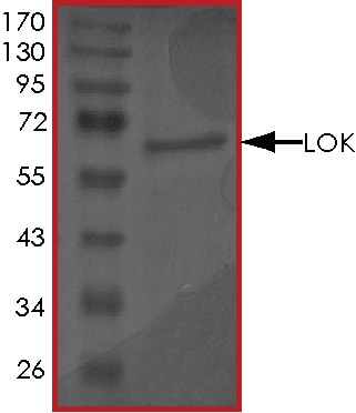 SDS-PAGE - Recombinant human LOK protein (ab55710)