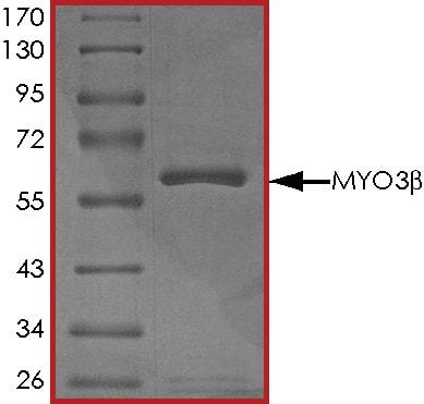 SDS-PAGE - Recombinant human Myosin IIIB protein (ab55716)