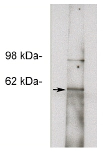 Western blot - Anti-NOTUM antibody (ab55839)