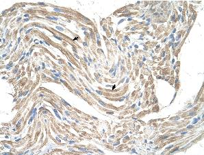 Immunohistochemistry (Formalin/PFA-fixed paraffin-embedded sections) - Anti-CKMT2 antibody (ab55963)