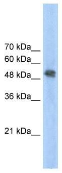 Western blot - Anti-FECH antibody (ab55965)