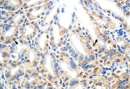 Immunohistochemistry (Formalin/PFA-fixed paraffin-embedded sections) - Anti-E2F7 antibody (ab56022)