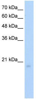 Western blot - Anti-RGS8 antibody (ab56052)