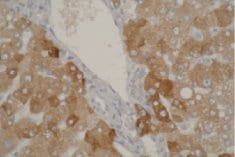 Immunohistochemistry (Formalin/PFA-fixed paraffin-embedded sections) - Anti-CYP2A6 antibody [F16 P2 D8] (ab56069)