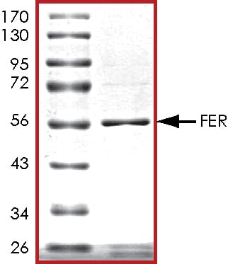 SDS-PAGE - Recombinant mouse FER protein (ab56258)