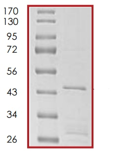 SDS-PAGE - Recombinant Human p21 protein (ab56278)