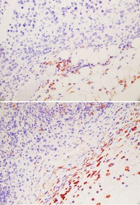 Immunohistochemistry (Formalin/PFA-fixed paraffin-embedded sections) - Anti-Macrophage antibody [RM0029-11H3] (ab56297)