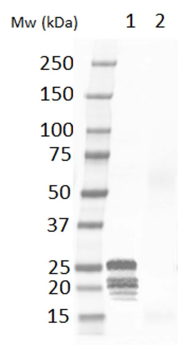 Western blot - Anti-Cardiac Troponin I antibody (ab56357)